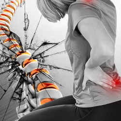 Las hernias discales destruyen tu columna