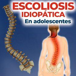 Escoliosis idiopática en adolescentes