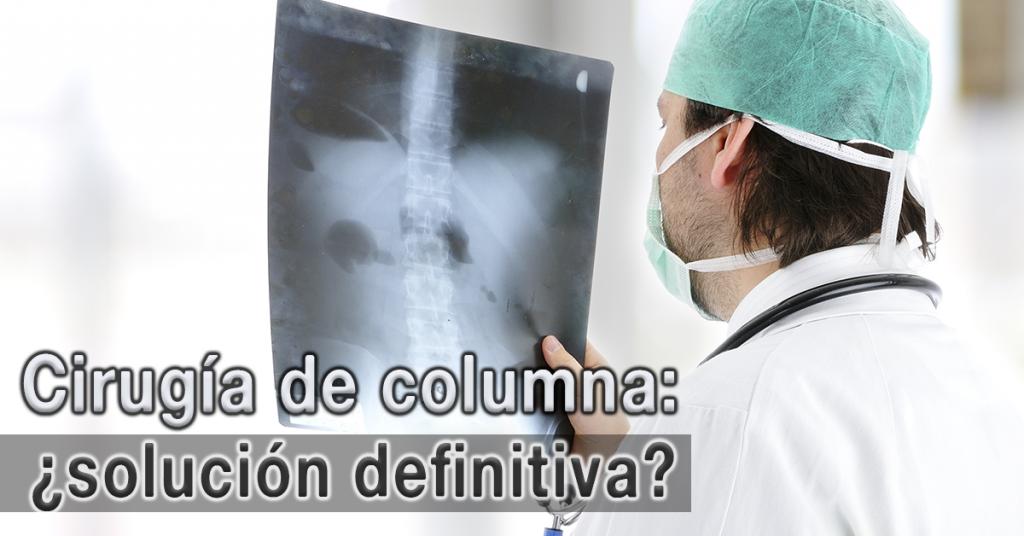 Usa Cordus y Sacrus para tratar hernias discales y evita una cirugía.